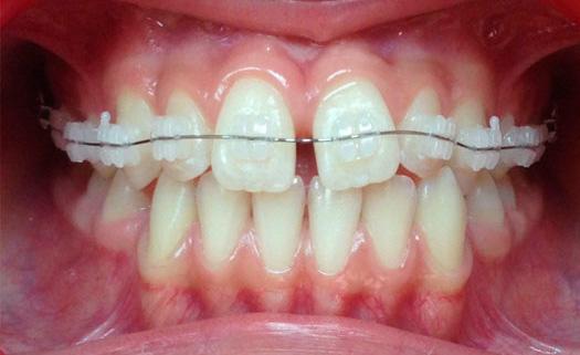 Брекеты (до) | 3D Стоматология Сочи